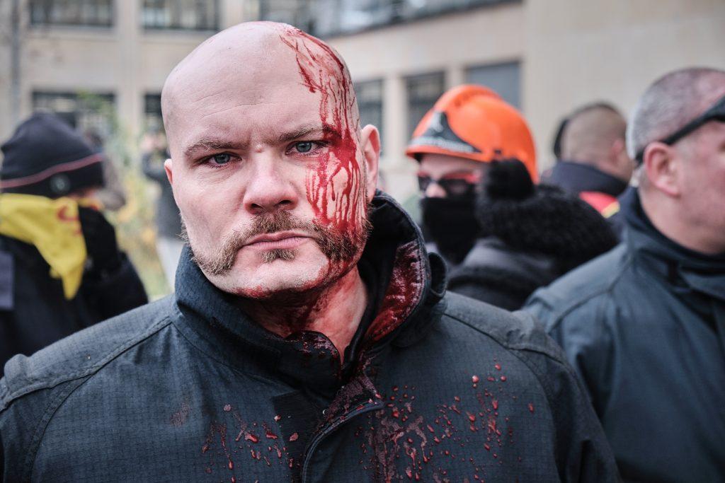 Un pompier touché à la tête lors de la manifestation du 5 décembre à Lille contre la réforme des retraites. Crédit photo : Quentin Saison